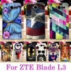 Жесткий Прозрачная Сторона Чехол Для ZTE L3 Капа Оболочки мода Роскошный Чехол Для ZTE Blade L3 Телефон Случаях Назад Протектор кожи